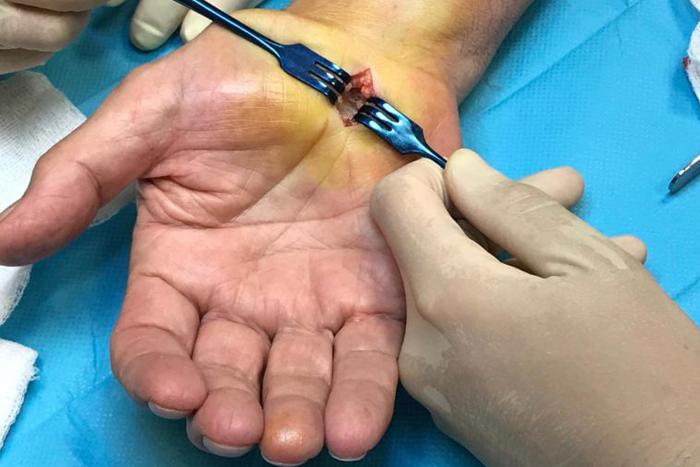 compresiones nerviosas unidad de mano clinica duque