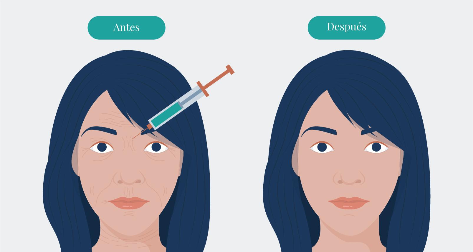 cuidados antes y despues del tratamiento de botox en burgos